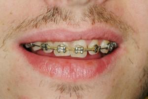 Patient med äldre typen av tandställning