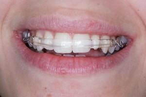 En patient visar upp sitt leende med en estetiskt tilltalande tandställning från Inman Aligner