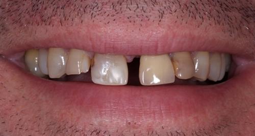 Mellanrum mellan tänder kan synas mycket väl