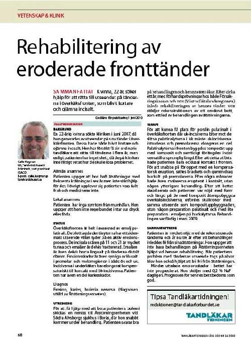 Calle Hagmans artikel i tandläkartidningen om eroderade framtänder