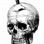 Kranium med järnspett som visar Phineas Gage olycka