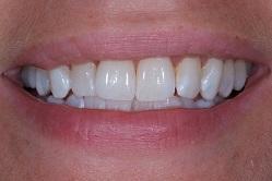 Patient efter tandblekning
