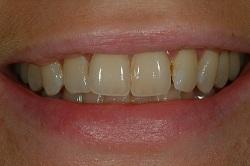 Patient före tandblekning i närbild