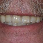 Patientfall Anders med snedställda tänder