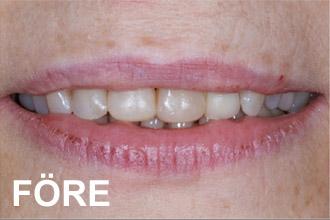 Närbild mun kvinna som fått estetisk tandvård behandling av tandläkare Calle Hagman