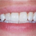 tandblekningsmedel