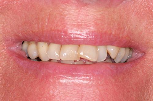 pärla på tanden