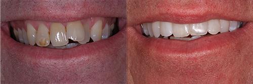 rakare tänder