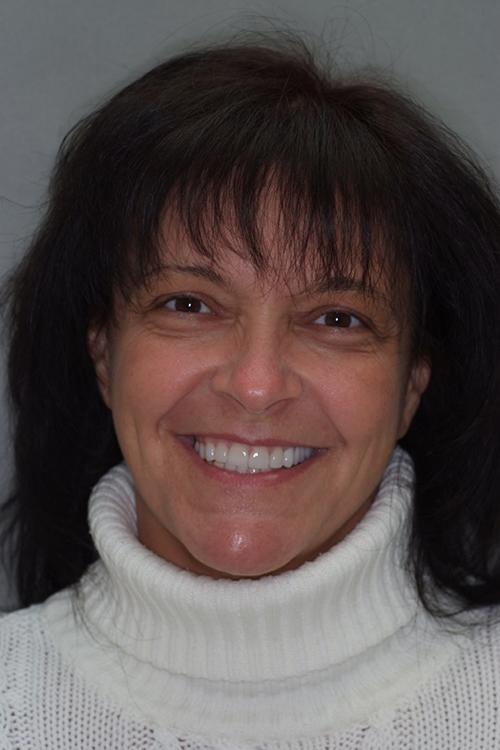 Maria patient hos tandläkare Calle Hagman