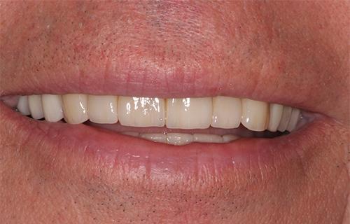 Slitskador på tänder
