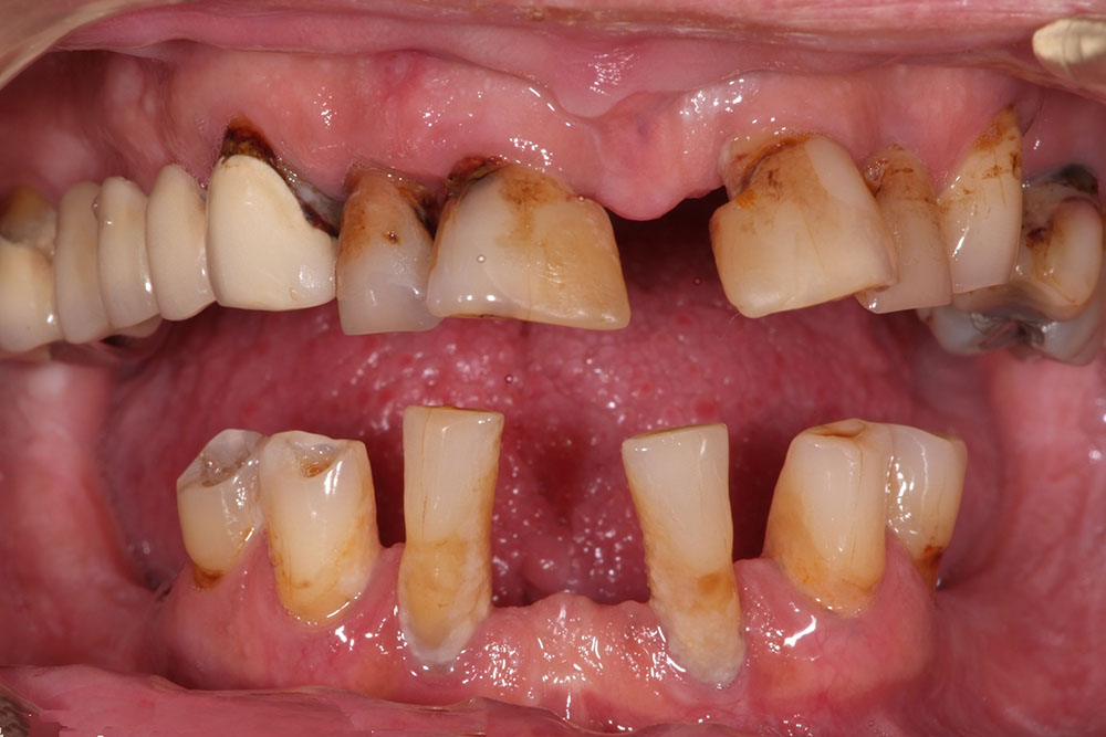 mitt tandkött blöder