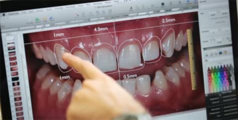 DSD-Digital-Smile-Design-em-PORTO-ALEGRE1
