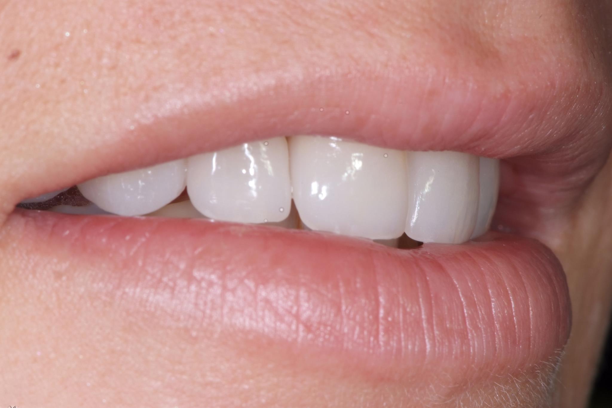 tänder av poslin
