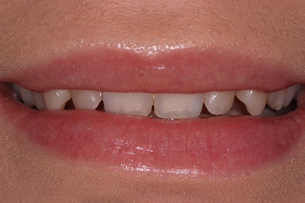 mellanrum mellan tänderna